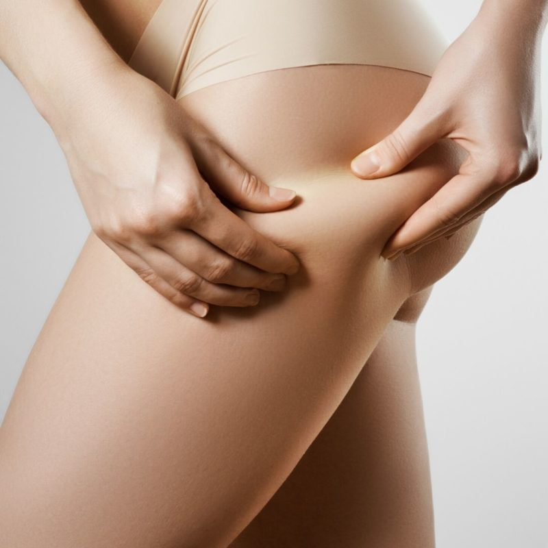 cause cellulite -myfloreschic..jpg